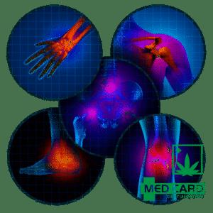 Medical Marijuana Arthritis