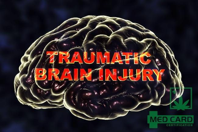 Marijuana Help With and Treat Traumatic Brain Injury